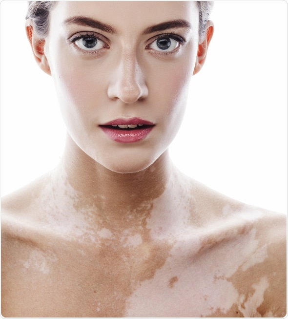 Woman with vitiligo disease