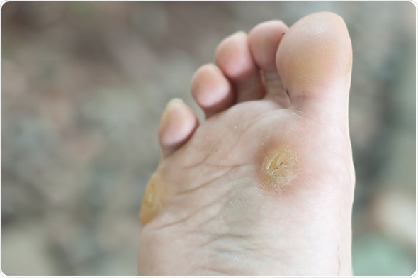 Maïs de pied