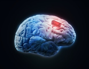 Study: Epilepsy brain implant does not induce changes to patients' personalities or self-perceptions