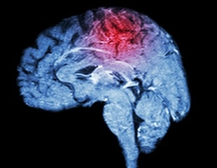Human cerebral organoid model to screen drugs for treatment of Creutzfeldt-Jakob disease