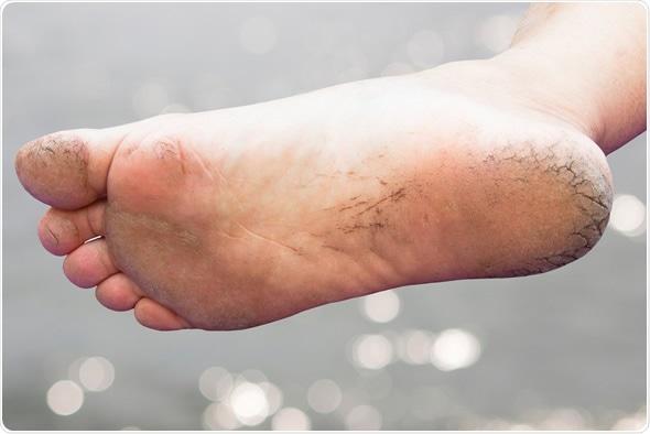 Cracked Heels - Copyright: Kriengsuk Prasroetsung / Shutterstock