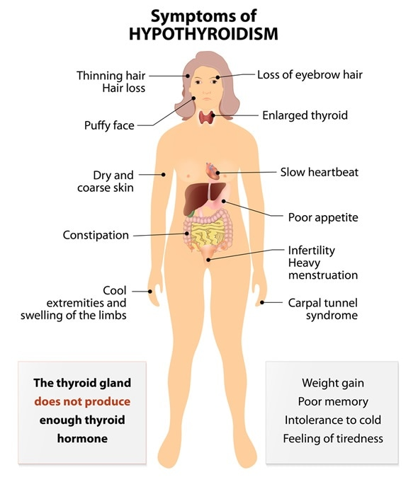 Signs and Symptoms thyroid dysfunction Image Copyright: Designua / Shutterstock