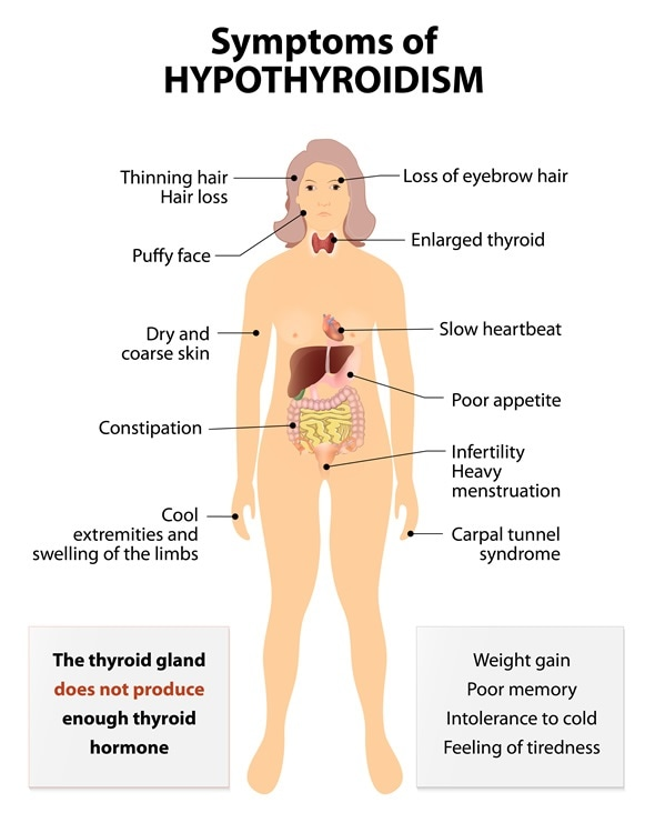 Hyperthyroidism or over active thyroid. Hyperthyreosis. Signs and Symptoms thyroid dysfunction - Image Copyright: Designua / Shutterstock