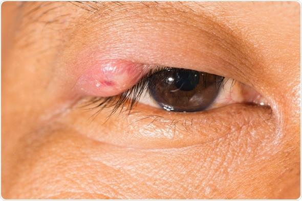 Close up of the stye during eye examination. Image Copyright: ARZTSAMUI / Shutterstock