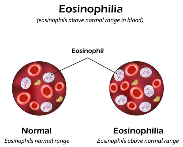 Eosinophils above normal range in blood. Eosinophilia. Infographics. Vector illustration. Image Copyright: Timonina / Shutterstock