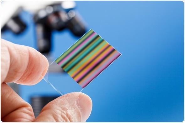 Chromatography genetic fingerprinting - Image Copyright: science photo / Shutterstock
