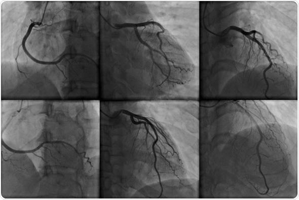 Coronary angiography - Image Copyright: kalewa / Shutterstock
