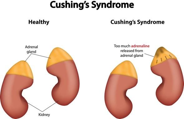 Le syndrome de Cushing - droit d