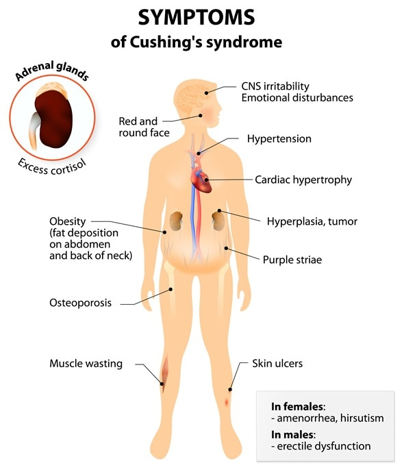 Signs and symptoms of Cushing