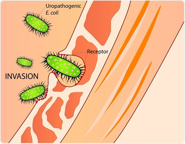 invasion of E. Coli - Image Copyright: mmzgombic / Shutterstock