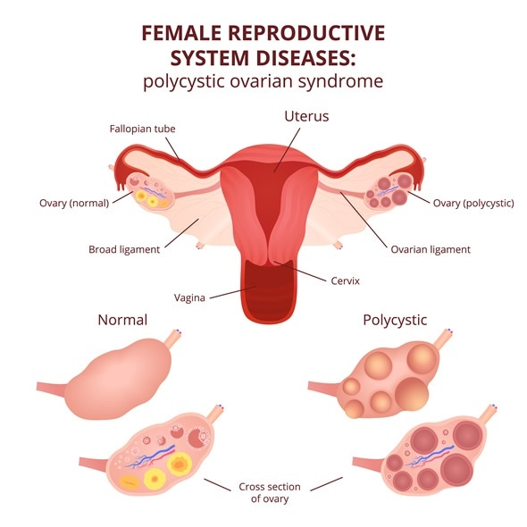 Female reproductive system, the uterus and ovaries scheme, polycystic ovary syndrome, ovarian cyst - Image Copyright: Marochkina Anastasiia / Shutterstock