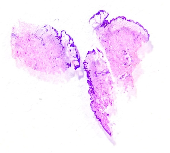 Slide tissue biopsy from skin for diagnosis in pathology laboratory. Image Copyright: Pongsak A / Shutterstock