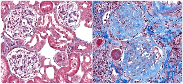 Normal healthy glomeruli (left) with glomerulosclerosis (right) a condition with fibrosis (scar) of the glomeruli (blue stain). The thin loops of blood vessels are replaced by the blue scar tissue. Image Copyright: vetpathologist / Shutterstock