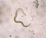 Toxocariasis: Background, Types, Diagnosis, Treatment