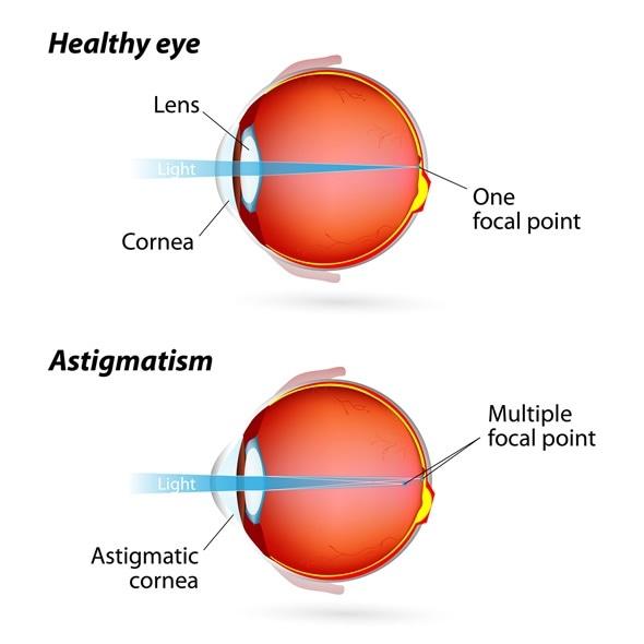 Astigmatism. Eye Condition - Image Copyright: Designua / Shutterstock