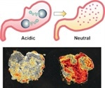 Tiny 'submarines' could help treat stomach diseases with acid-sensitive drugs