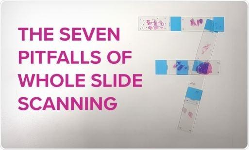 Seven pitfalls of whole slide scanning