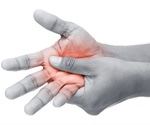 Concomitant diabetes associated with osteoarthritic hand pain