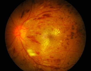 UIC researchers use new approach to identify genes that cause diabetic retinopathy