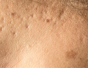 Syneron's Sublative technology receives CE Mark for effective treatment of striae, acne scars