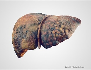 Study identifies three clinical course variations in patients with acute decompensated cirrhosis