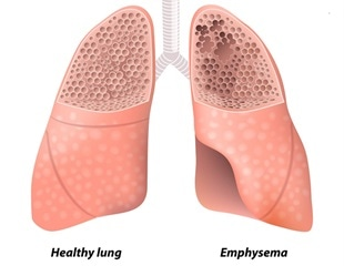 Injecting mice with pulmonary endothelial cells can reverse symptoms of emphysema