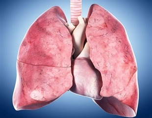 Liquid gel in COVID patients' lungs could be the key to new effective therapies