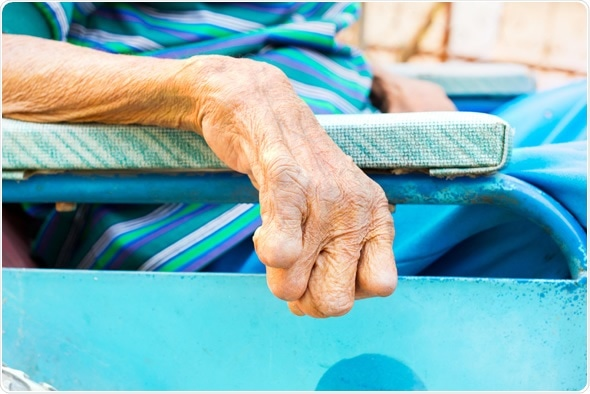 closeup hand of old man suffering from leprosy, amputated hand, on wheelchair - Image Credit: Tidarat Tiemjai / Shutterstock