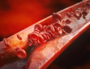 Higher the blood cholesterol level, greater the risk of atherosclerosis: Study