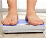 Cancers linked to obesity account for 40% of all cancers in the US, report states