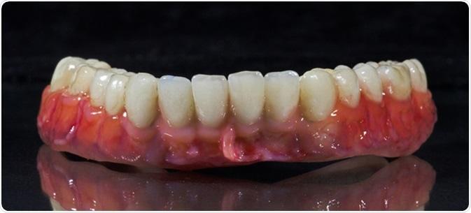 Denture, dental bridge, Image Cerdit: Goran Cakmazovic / Shutterstock