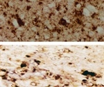 Scientists detect pathological prion protein in skin of CJD patients