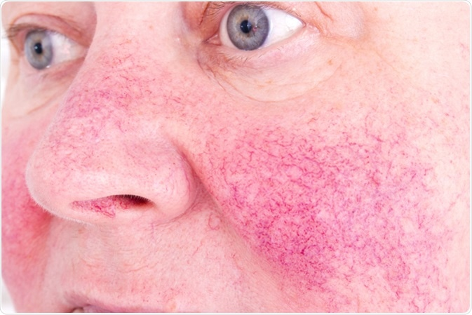 Acne rosacea caratterizzata piccoli e dai vasi sanguigni dilatati superficiali facciali di rossore. Credito di immagine: Lipowski Milano/Shutterstock