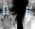 Facilitating Bone Repair with Bioactive Glass Bone Grafts