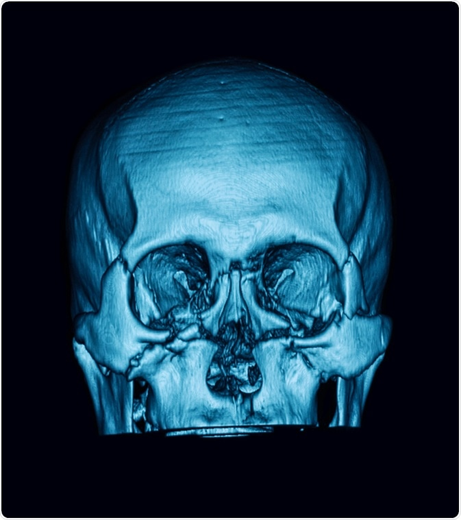 Computed tomography (3DCT scan) of facial bone, showing multiple maxillofacial fractures. Image Credit: Suttha Burawonk /Shutterstock