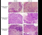 Researchers develop novel in vivo model for studying pancreatic cancer