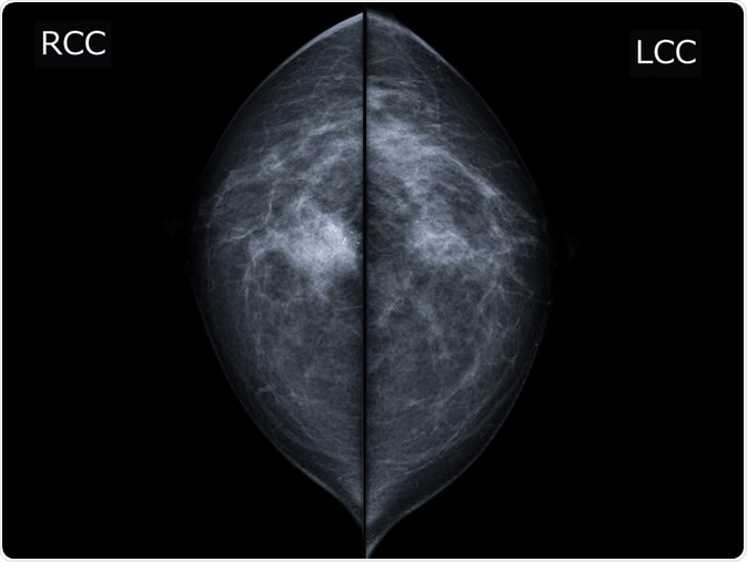 X-ray mammogram image of breast with cancer. - breast cancer of right breast. Image Credit: MossStudio / Shutterstock