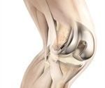 DePuy Synthes knee system shown to be beneficial for economics and patient reported outcomes