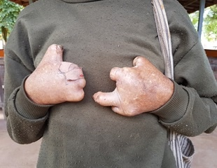 Better education for patients, doctors on disease symptoms may help reduce leprosy in Brazil