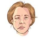 Lyme disease emerging in Canada