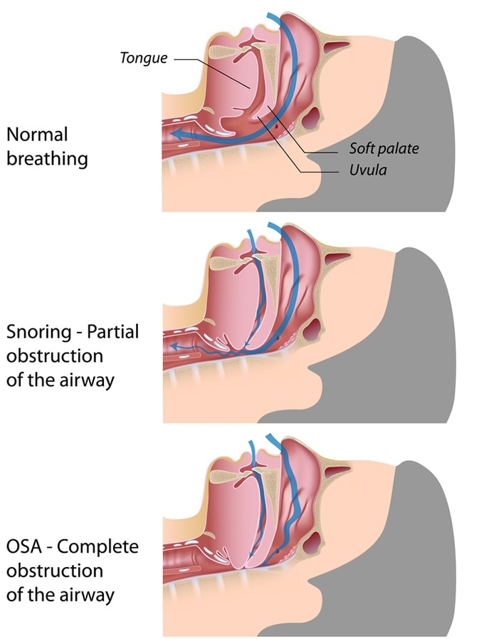 Obstructive Sleep Apnea - Image Credit: Alila Medical Media / Shutterstock