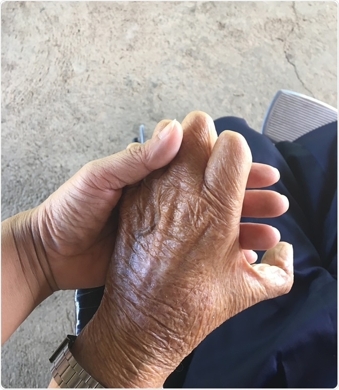 Closeup hands of old man suffering from leprosy, amputated hand. Image Credit: Kritsana Thaweekoon / Shutterstock