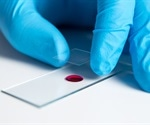 Trial shows safety of pre-transplant expansion of umbilical cord blood stem cells