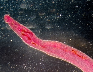 WHO marching toward extraordinary progress against neglected tropical diseases, report reveals
