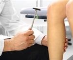MDL announces HPV-16 Status reflex test