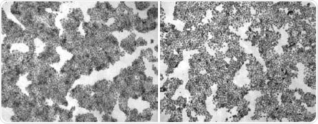 Adherent cell line A431 before (left) and after washing (right) with PBS using Program 1