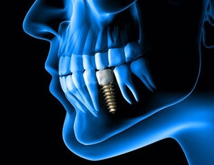 New technology to improve dental implant bridges receives US patent
