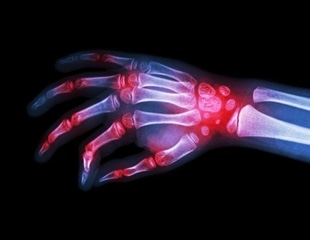 Targeted Therapies Alliance provides new information, resources about the rheumatoid arthritis journey