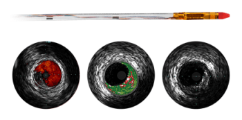 Eagle Eye Platinum ST Digital IVUS Catheter from Philips Healthcare