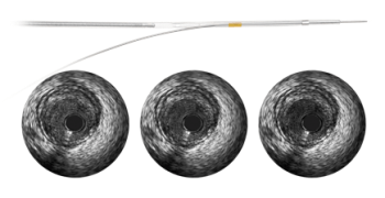 Philips Healthcare's Revolution Rotational IVUS Imaging Catheter
